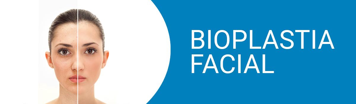 bioplastia facial 2